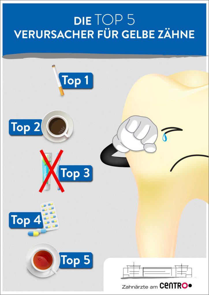 Top5 gelbe Zähne